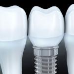 wszczep zęba