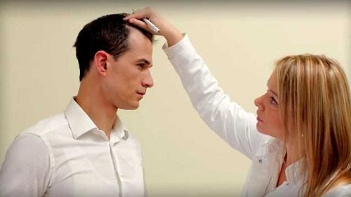 badanie wypadajacych włosów