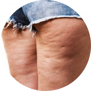 kobieta w szortach z cellulitem