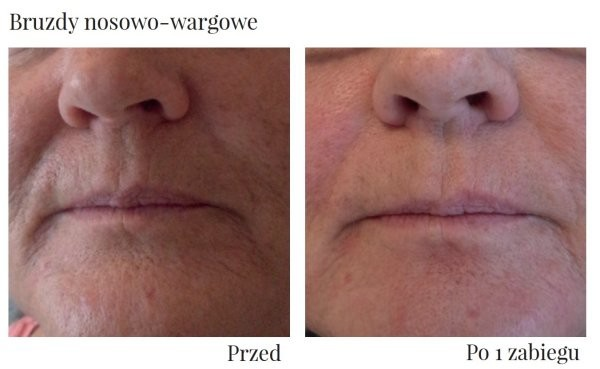 efekty liftingu na ustach